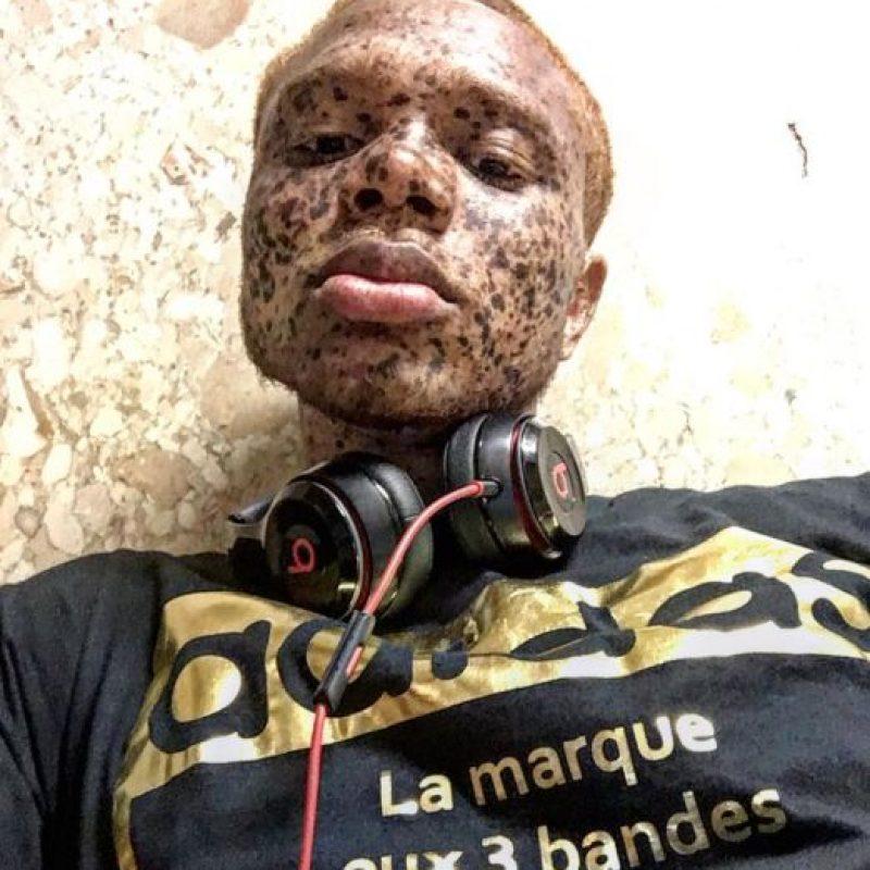 Ralph Souffrant es de Haití e impacta por sus pecas. Foto:vía Instagram