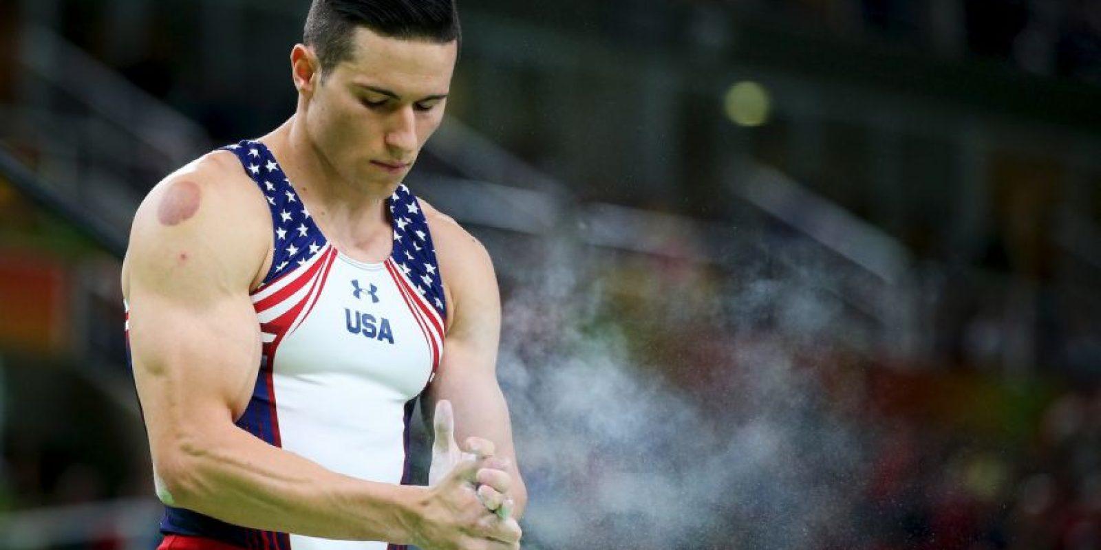 Otros deportistas que tienen huellas de la ventosaterapía son Alex Naddour Foto:Getty Images