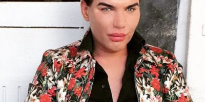 Acá, antes de transformar su nariz. Foto:Instagram/rodrigoalvesiuk