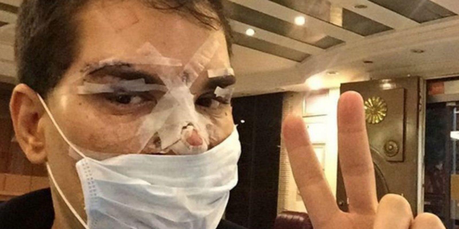 Así quedó Alves cuando casi se le pudre la cara. Cerró su Instagram hasta no recuperarse. Foto:Instagram