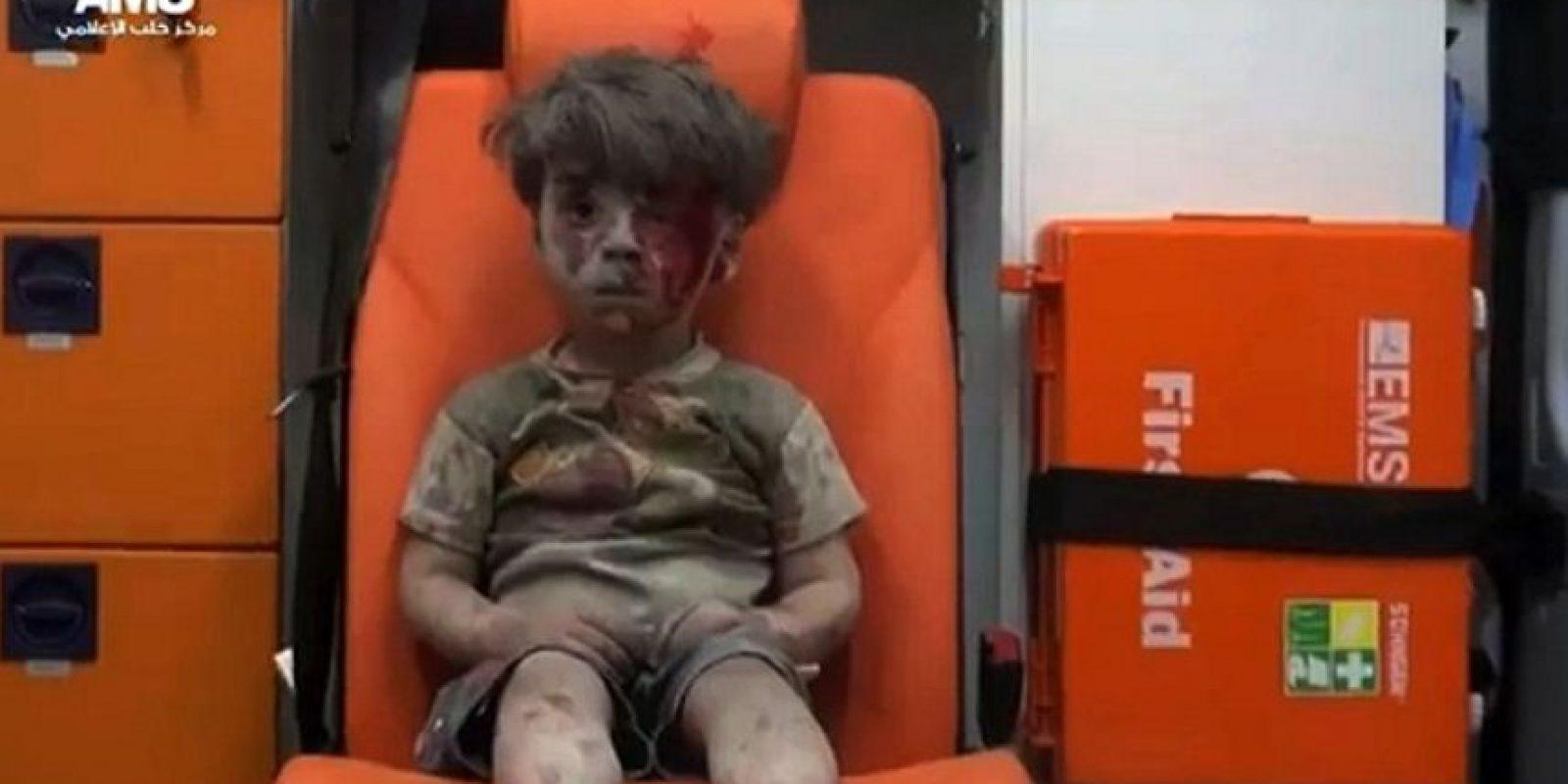 Resultó herido en un bombarde en Aleppo Foto:AFP