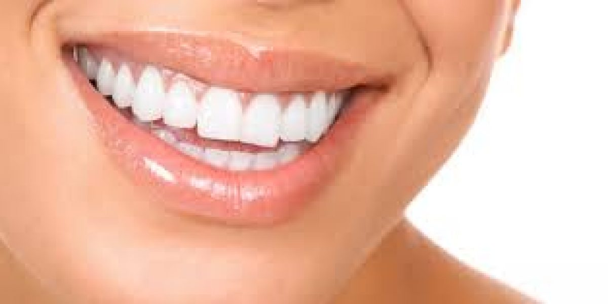 ¿Cómo blanquear los dientes en una hora?