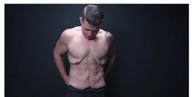 VIDEO: La mayor inseguridad del hombre que perdió 72 kilos