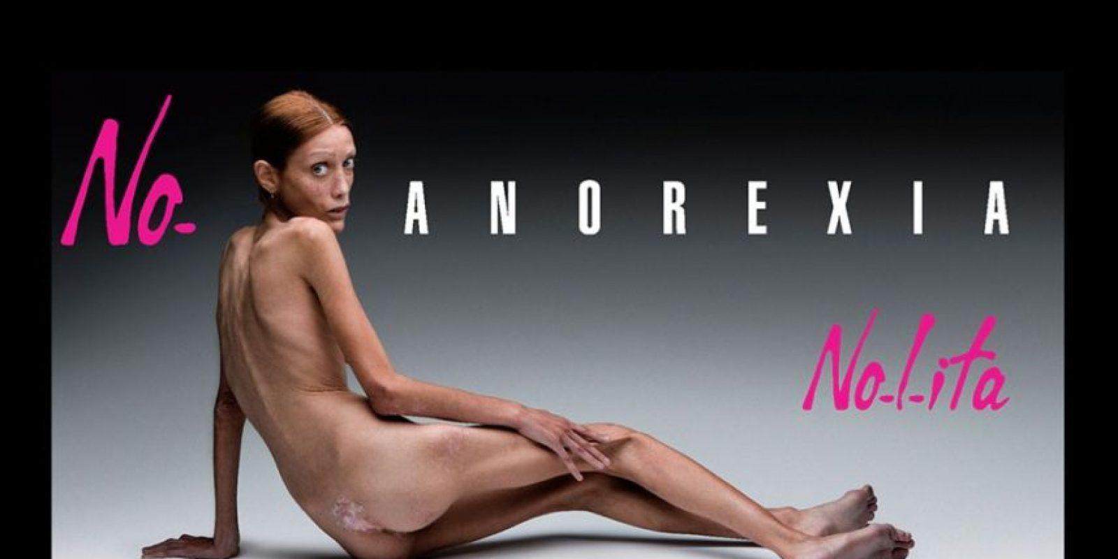 Esta campaña contra la anorexia protagonizada por la malograda Isabelle Caro fue criticada en 2007 Foto:No-Lita