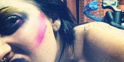 VIDEO: A Lady Gaga le duele más la fama que su nuevo tatuaje en la axila