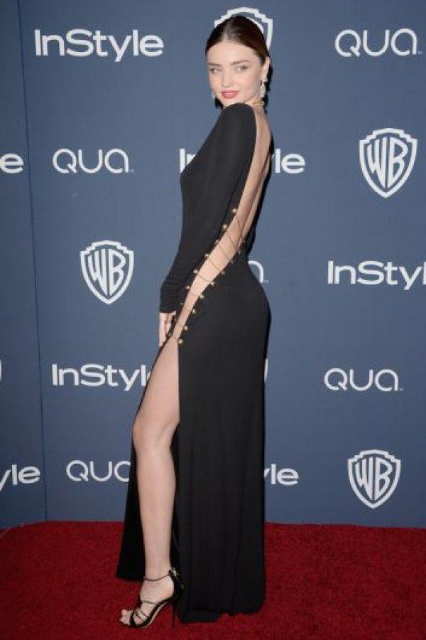La modelo sufrió problemas de autoestima cuando ingresó al mundo de las pasarelas. Foto:Getty Images