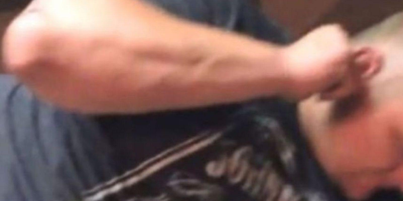 Un hombre tenía una gran polilla en su oreja Foto:Youtube