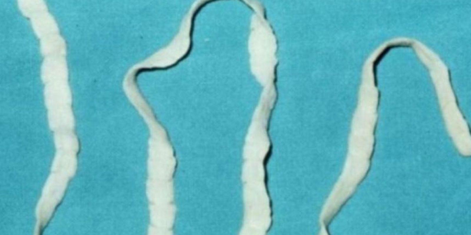 Las tenias pueden vivir en la cabeza y estómago Foto:Getty Images