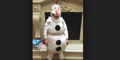 Olaf no se hizo cirugía de piel. Foto:Imgur