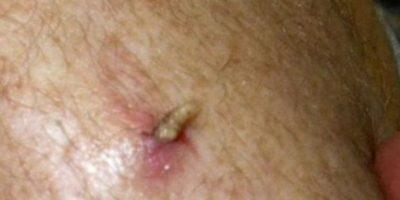 Siembran su nido dentro de la piel y luego salen. A veces toca extraerlos. Foto:Youtube