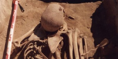 Descubren posible caso más antiguo de cáncer en la historia humana