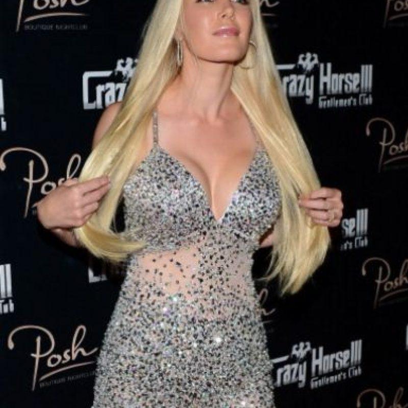 Heidi no es lo que era en 2006. Mas las otras cirugías, los implantes destacan. Foto:Getty Images