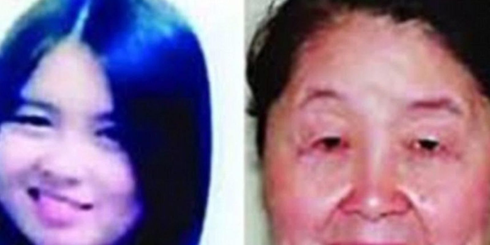 Hu Juan tiene una enfermedad llamada Cutis Iaxa, que hace que su rostro de 28 años luzca como el de 60 años Foto:Xinhua
