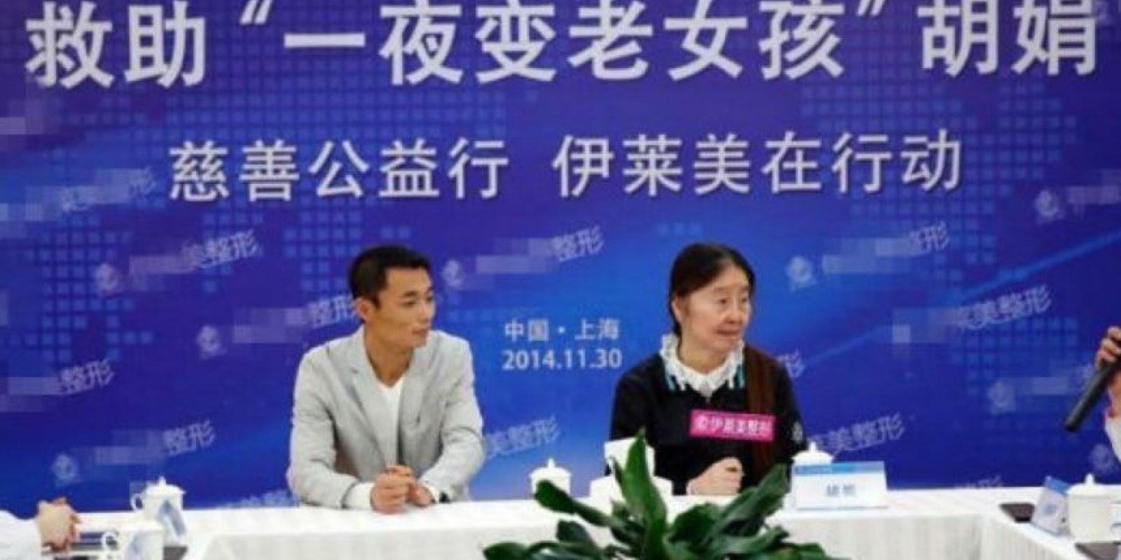 Ella ahora quiere hacerse cirugía plástica, ya que ha sufrido de depresión por su apariencia Foto:Xinhua