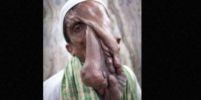 """Mannan Mondal es el """"hombre elefante"""" de la India Foto:Barcroft Media"""