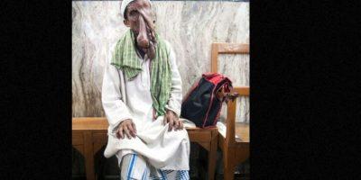 Su enfermedad es conocida como neurofibromatosis Foto:Barcroft Media