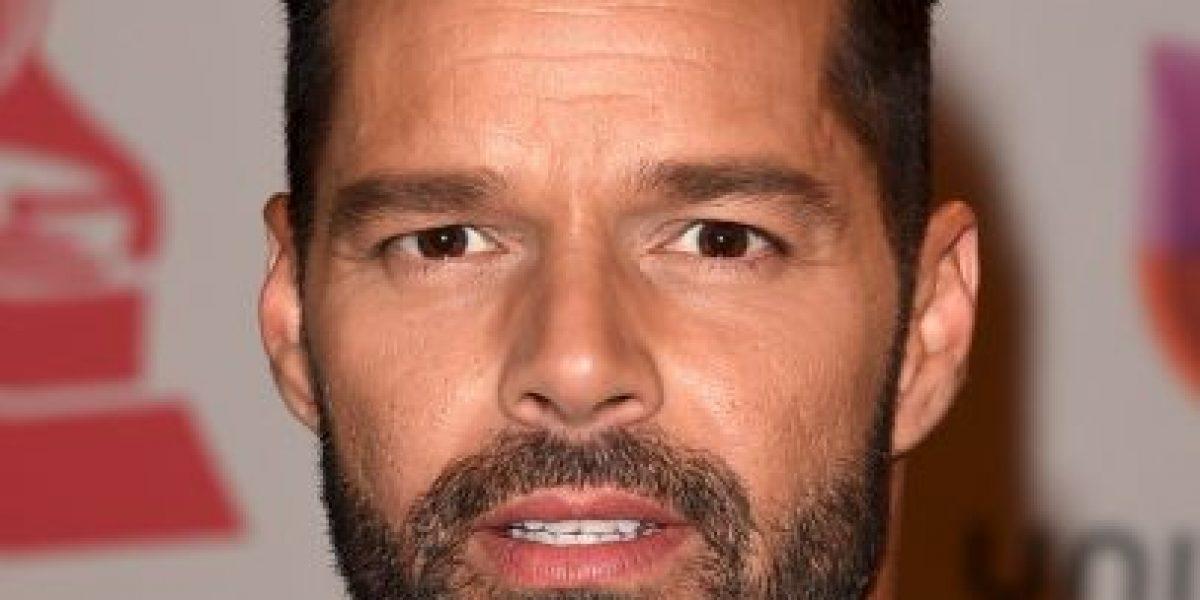 FOTOS: Se somete a 4 cirugías en la cara para parecerse a Ricky Martin