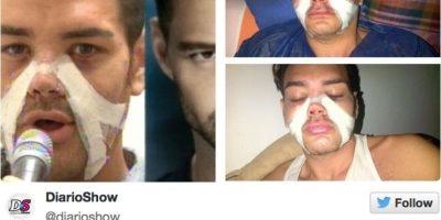 Este se hizo 4 cirugías para parecerse a él. Foto:Diario Show/Twitter