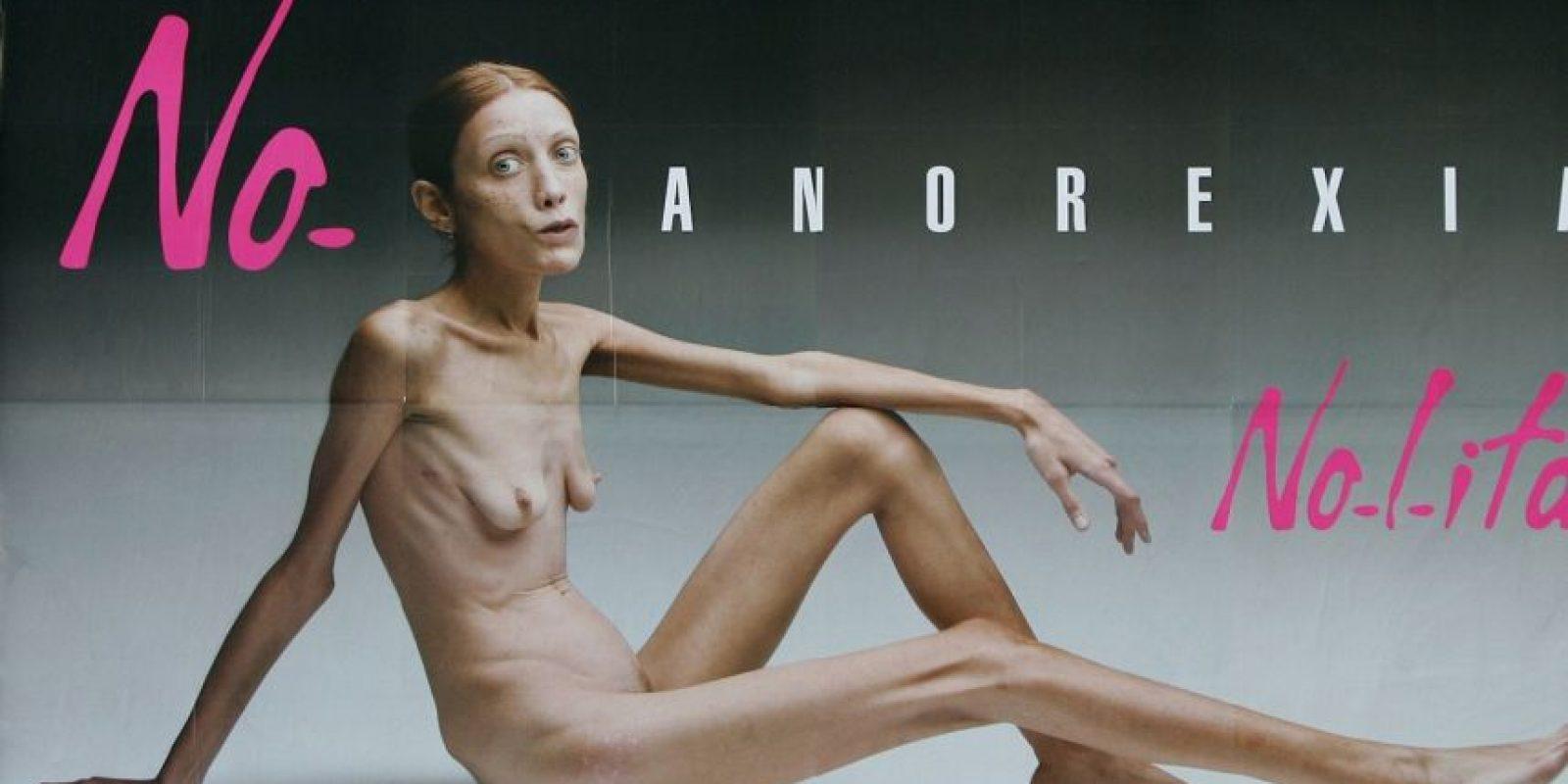 Sufrió toda su vida de anorexia. En 2007 se hizo conocida por esta fotografía, que reveló lo que causa la anorexia. Murió en 2010 de neumonía. Su madre, al no soportar su muerte, se suicidó poco después. Foto:No-Lita