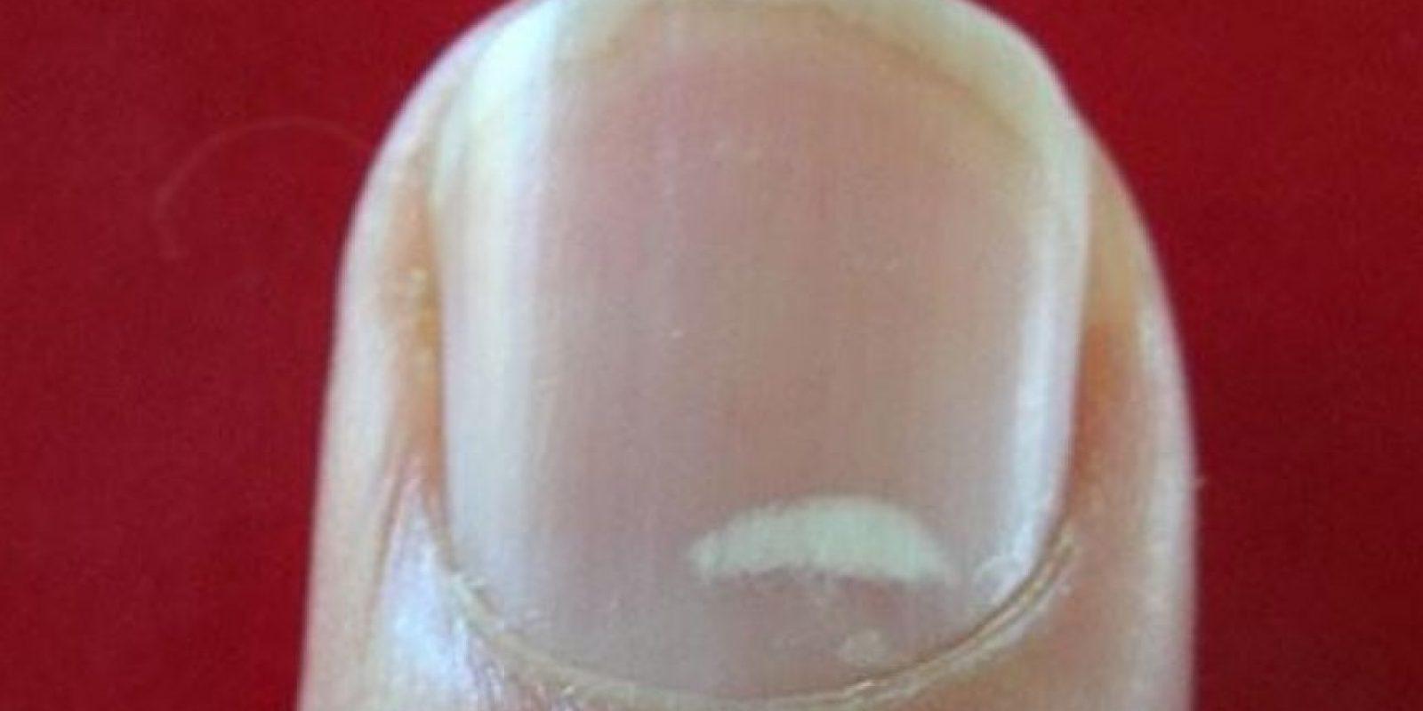 3. Es importante recalcar que cuando todas las uñas están afectadas con estas manchas o con rayas blancas, podría ser característica de enfermedades más graves tales como: Foto:Wikimedia