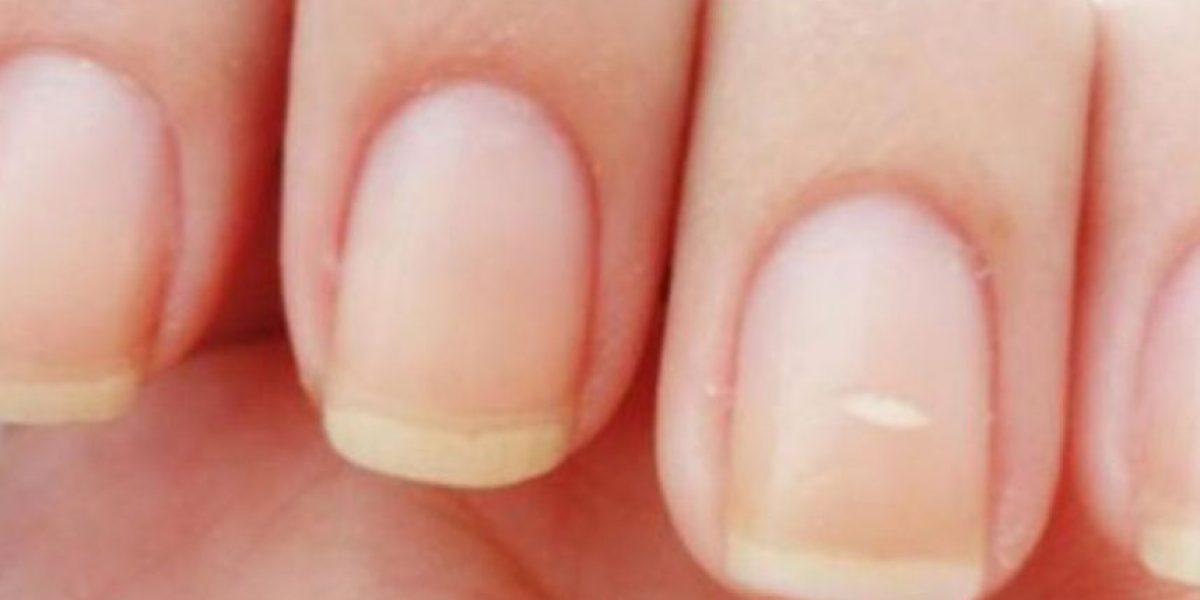 ¿Por qué tenemos manchitas blancas en las uñas?