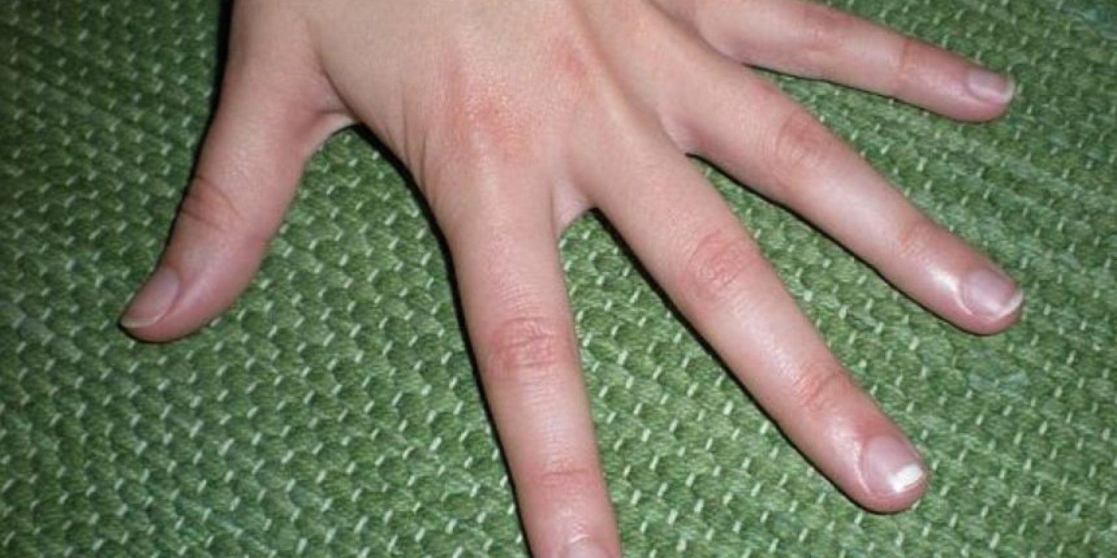 5. Otra posibilidad es que también surjan debido a una alergia, una infección leve o por el efecto secundario de algunos medicamentos. Foto:Pinterest