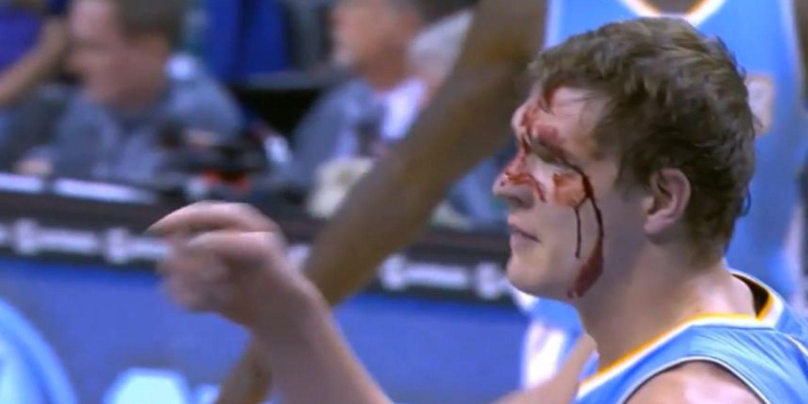 Timofey Mozgov fue golpeado en tres ocasiones en una misma jugada Foto:Youtube: Bball around