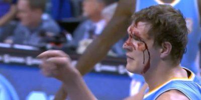 Sangre en la duela: Basquetbolista sufre terrible corte en el ojo