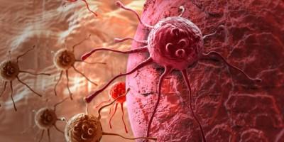 Estudio: El cáncer obedece más a la