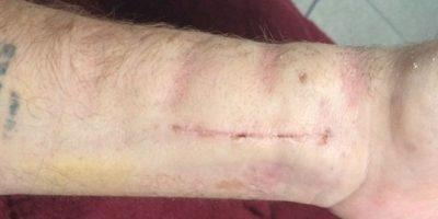 En meses pasados, el cantante compartió sus fotografías dentro y fuera del hospital para reportar la recuperación de su brazo Foto:Instagram/Drake Bell