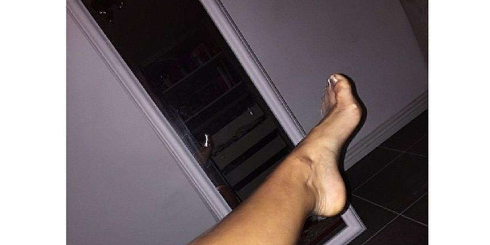 """Compartió esta foto en Instagram, donde se puso un condón en su pierna y afirmó que ningún hombre podría """"llenarlo"""" Foto:Instagram"""