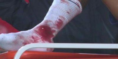 El fuerte impacto de Neymar en s calceta. Foto:Twitter