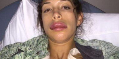 Pero así quedó luego de inyectarse más sustancias en los labios. Foto:Farrah Abraham/Twitter