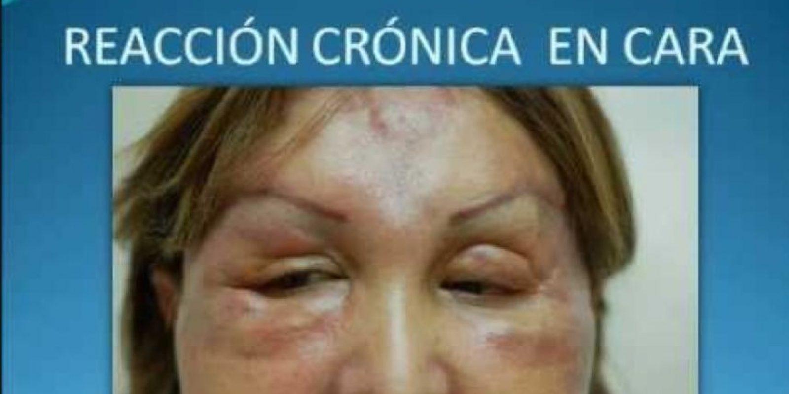 Esto puede suceder si hay reacción alérgica. Foto:Doctor Billy Spence/Youtube
