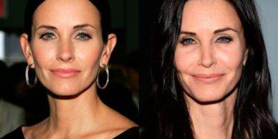 FOTOS. Actrices famosas antes y después del bisturí
