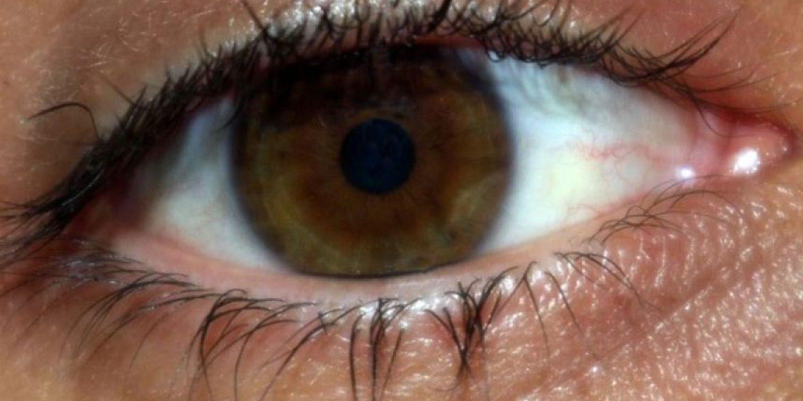Posteriormente se encontró que las células habían curado lesiones de córneas. Foto:Tumblr.com/tagged-ojos
