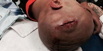 Terrible herida por un cabezazo