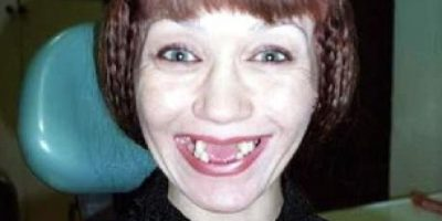 FOTOS: 31 rostros más extraños que sólo podrán ver en internet