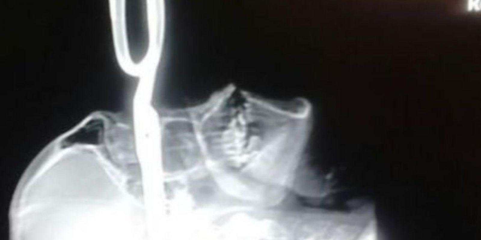 Jonas Acevedo Monroy, de 32 años y del estado de Chihuahua en México fue atacado por Miguel Ángel Rodríguez Armendáriz, alias El Sierreño', quien le clavó unas tijeras luego de la discusión. Foto:Fiscalía de Chihuahua