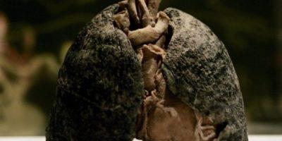 VIDEO: Así se ven los pulmones de un fumador después de 15 años