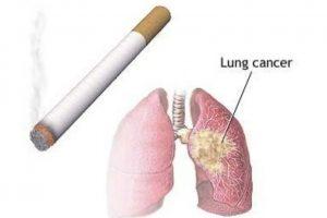 El consumo de cigarrillo es la principal causa de este tipo de cáncer. Cuantos más cigarrillos fume usted al día y cuanto más temprano haya comenzado a fumar, mayor será el riesgo de padecer cáncer pulmonar. Foto:Tumblr.com/tagged-pulmón
