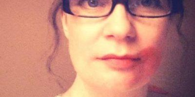#SmearForSmear: Campaña contra el cáncer cervical se hace viral