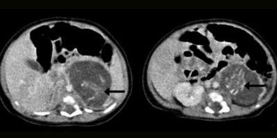 """Una niña nacida en Hong Kong presentó una rara anomalía al nacer: estaba """"embarazada"""" con dos fetos, que le fueron removidos en cirugía. Esto se dio por condiciones genéticas y enfermedades de su madre. Foto:Hong Kong Medical Journal"""