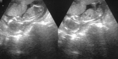Es tejido humano; pero no se le puede considerar un ser humano. Es un caso raro de gemelos siameses. Foto:Wikipedia