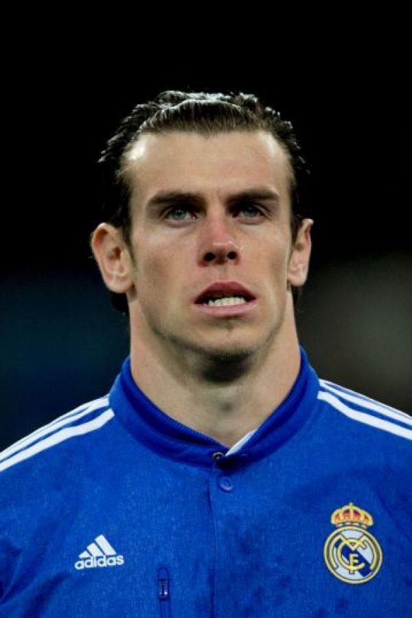 Bale se habría operado las orejas para mejorar su autoestima debido a que se trataba de un problema que lo hizo sufrir durante su niñez. Foto:Getty Images