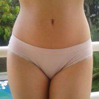 El injerto puede estar hecho de tejido natural, tal como la piel donante humano o intestino de cerdo. Foto:Tumblr.com/Tagged-mujer-vagina
