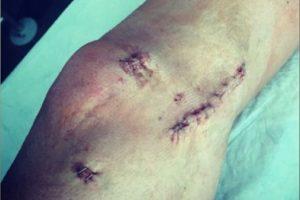 Andy se rompió los ligamento de la rodilla izquierda. Foto:instagram.com/andytcarroll
