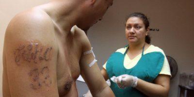 Un procedimiento de estos puede llegar a costar cientos de dólares en varias sesiones. Foto:Getty Images