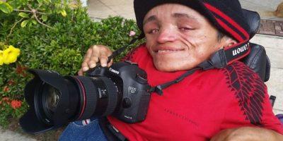 VIDEO: Nada detiene al fotógrafo con huesos de cristal