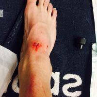 Así fue la lesión de Dani Carvajal que mostró en las redes sociales Foto:Instagram: @danicarvajal92
